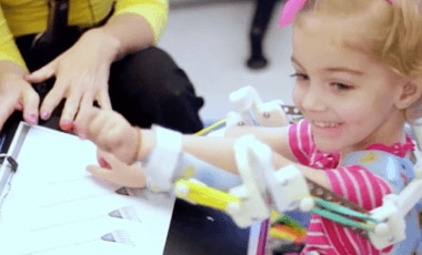 A young girl with prosthetic 3D printed arms